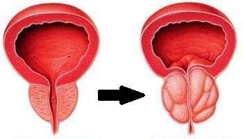前列腺囊肿对男性的危害大吗